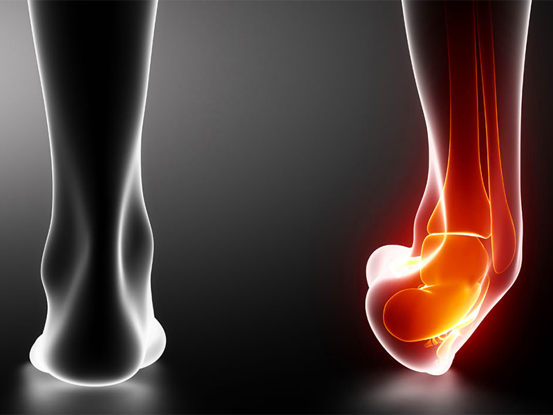 NATURAL REMEDIES TO RELIEVE A SPRAIN